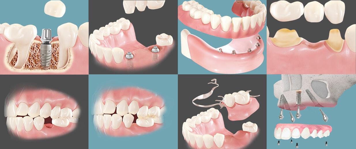Tractaments dentals