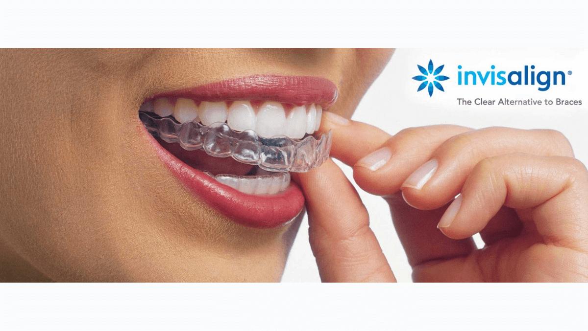 Invisalign ortodoncia invisible, Enric Pintado